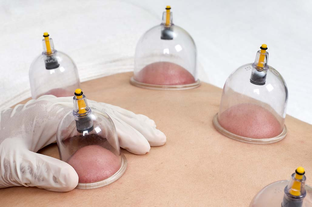 Dry Cupping Therapy